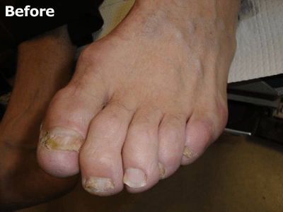Keryflex™ Nail Restoration System - Before