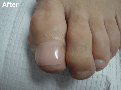 Keryflex™ Nail Restoration System - After