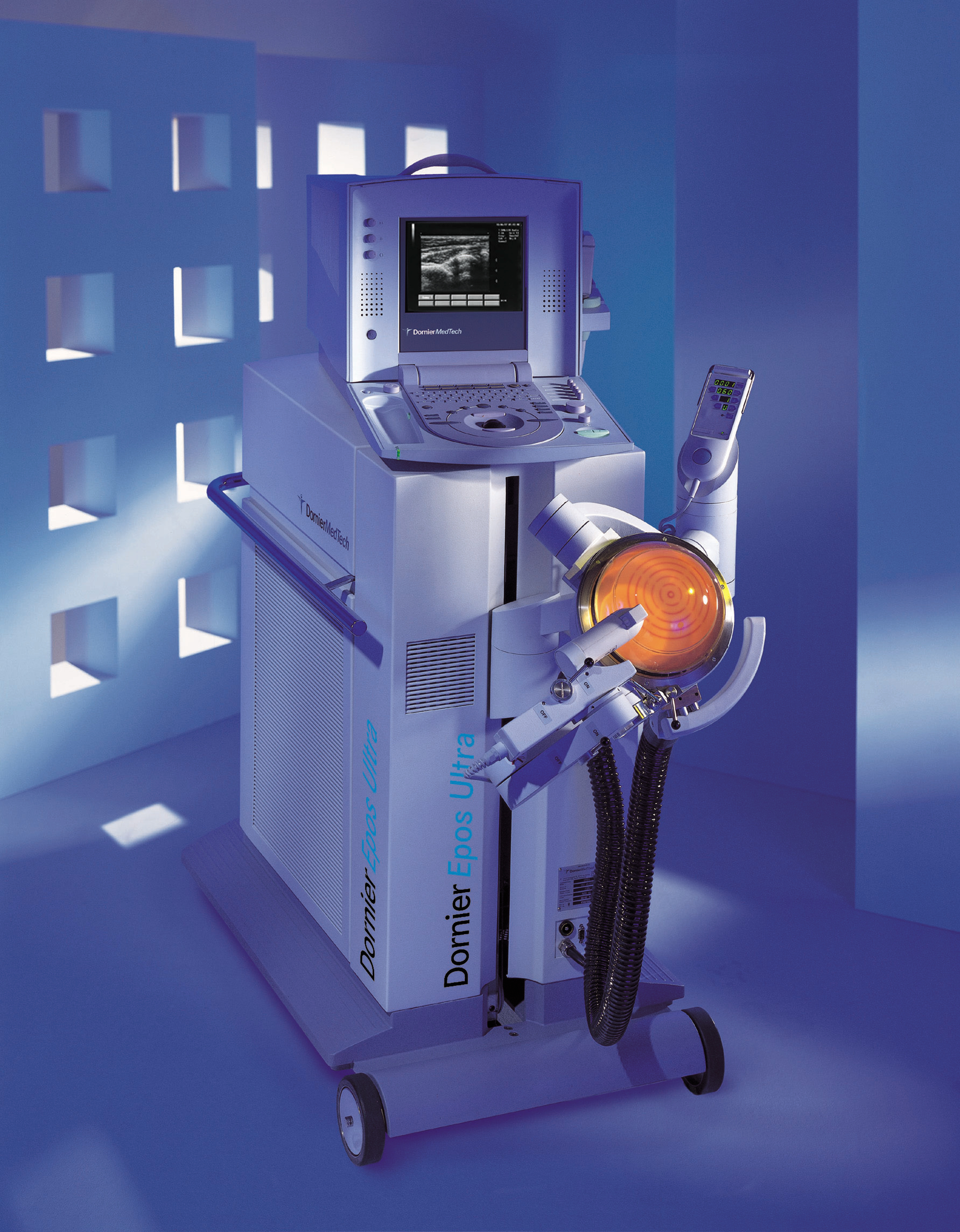 ESWT, Extracorporeal Shock-Wave Therapy