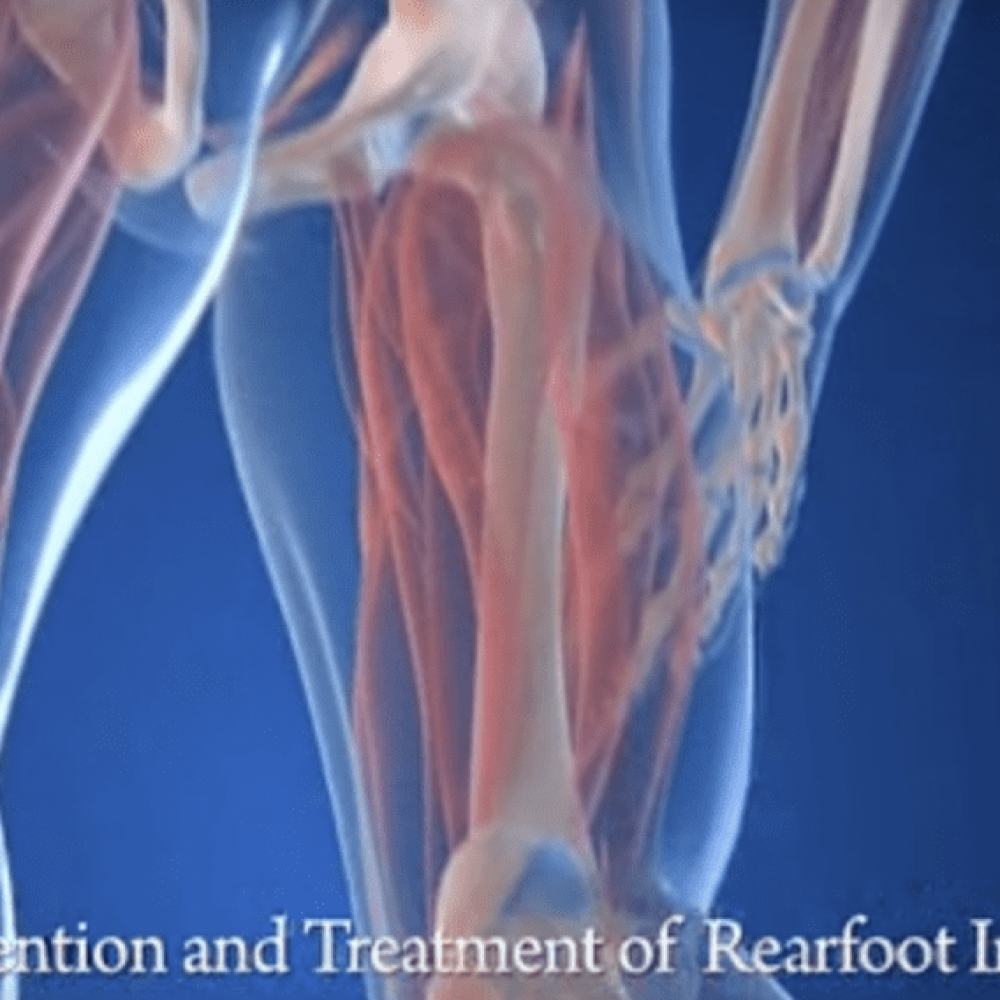 Prevention and Treatment of Rearfoot Injuries - Video Library
